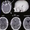 Understanding Intracranial Pressure 302