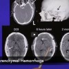 Subdural Hematoma and Subdural Hemorrhage – 304