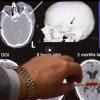 Goals of Neurosurgery After Severe Brain Injury – 309