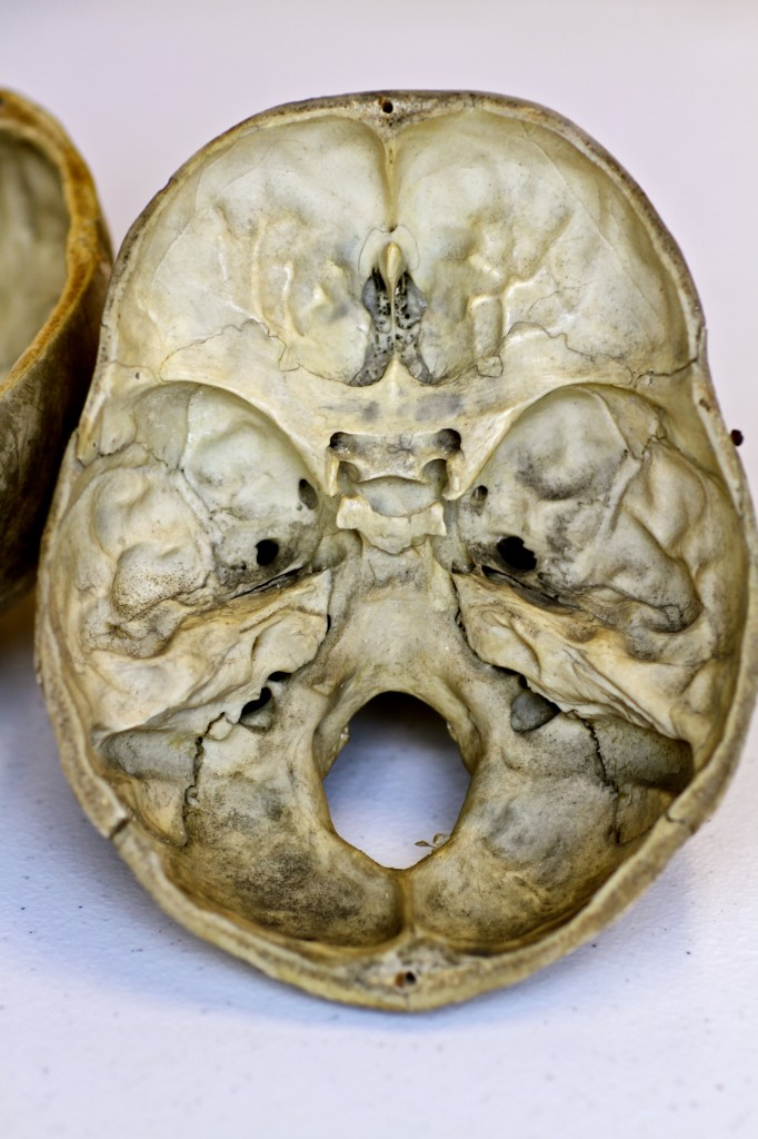 Cribriform Plate Of Skull Meinafrikanischemangotabletten