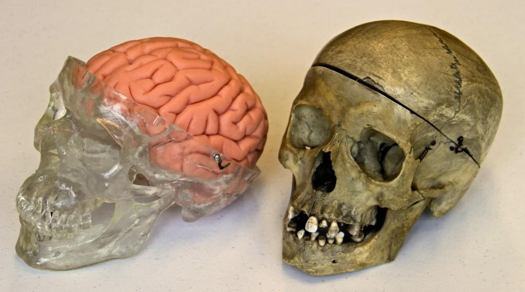 Skull and Model Brain