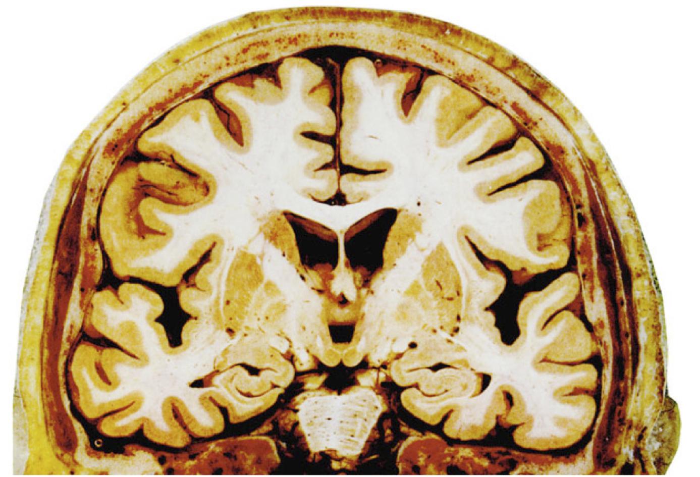 White Matter Brain Gray Matter And White Matter