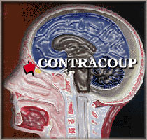 head contracoup