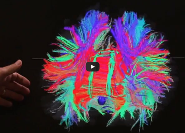 nightmares after brain surgery
