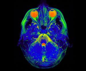 brain-mri-for-biomarkers-article